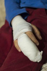 Bandagerad hand